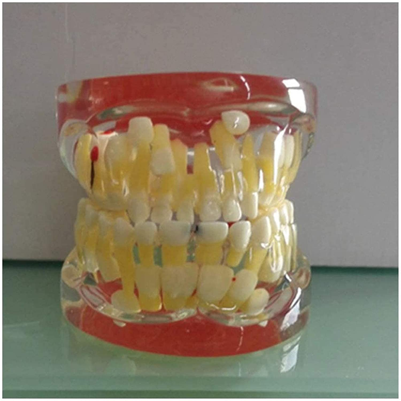 ZLF Pathologic Japan's largest assortment quality assurance Deciduous Teeth Transparent Model Dental -