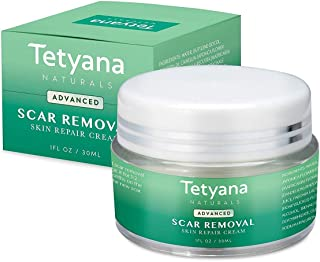Tetyana naturals Scar Removal Cream Advanced Treatment for Old & New Scars from Cuts Stretch Marks C-Sections & Surgeries With Natural Herbal Extracts Formula (hypoallergenic)