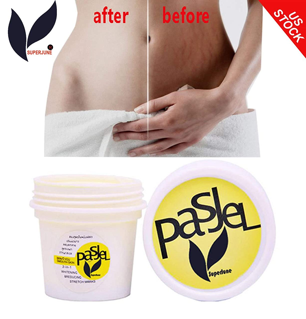 Stretch Marks Removal Cream Postpartum Repair Remover Skin Scar Body Treatment Cellulite by Superjune