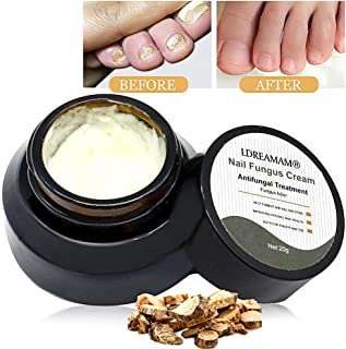 Nail Fungus Cream,Fungus Stop,Foot Fungus,Anti fungal Nail,Fungus Treatment Cream,Foot & Nail Fungus Treatment,Effective Against Nail Fungus,Repair and Protect Nails (20g)