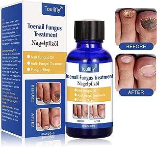 Nail Repair, Nail Repair Solution, Toenail Treatment, Effective Against Nail Infection Restores Discolored & Damaged Nails