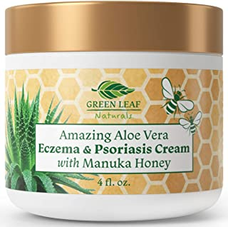 Amazing Aloe Vera Eczema and Psoriasis Cream with Manuka Honey by Green Leaf Naturals - 4 oz