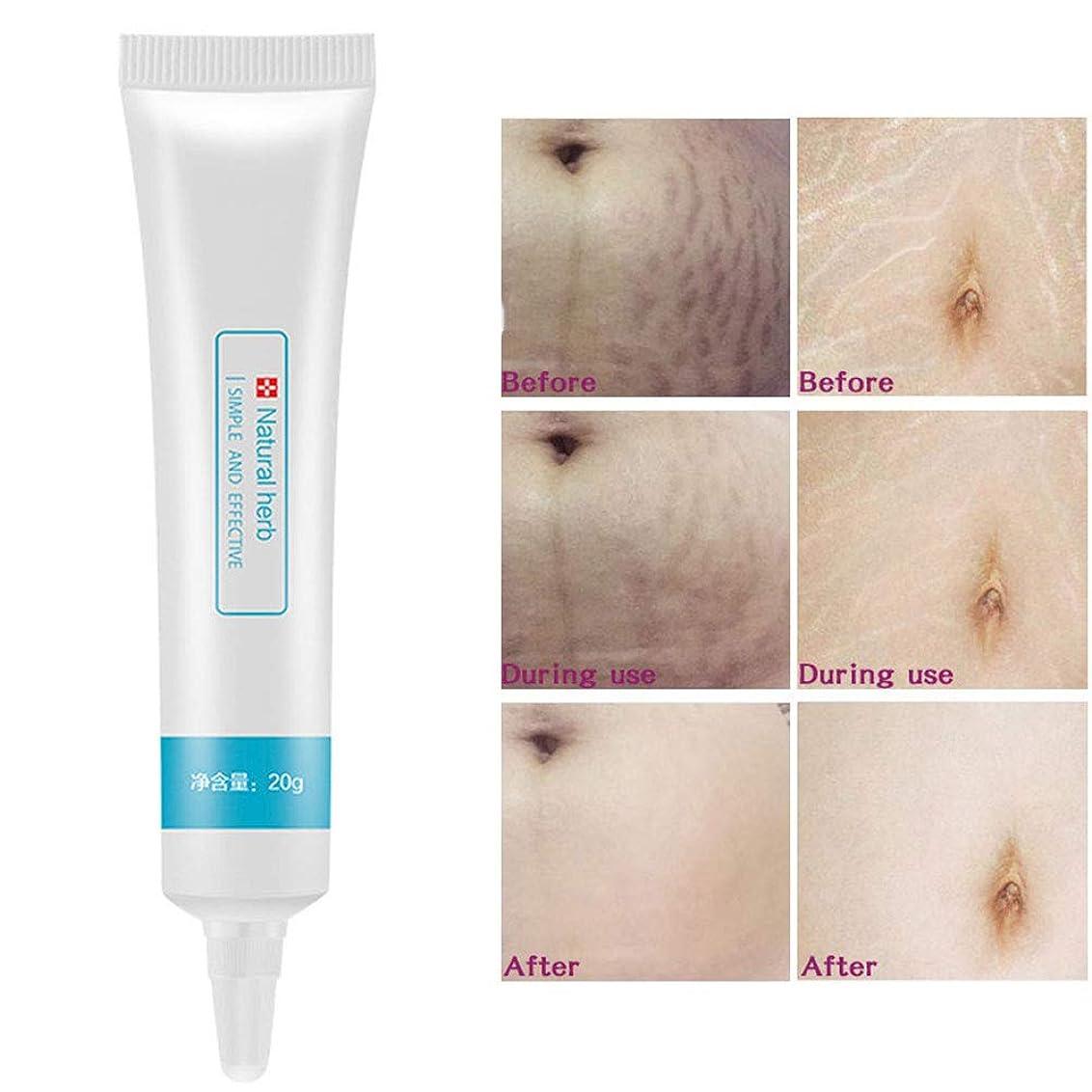 Creacom 瘢痕除去クリーム 修復クリーム 肌に栄養を与え 新陳代謝を促進し 修復手術の傷跡スキンケア ボディスキンケア にきび除去 モイスチャライザー クリーム修復傷 傷跡 除去 20g