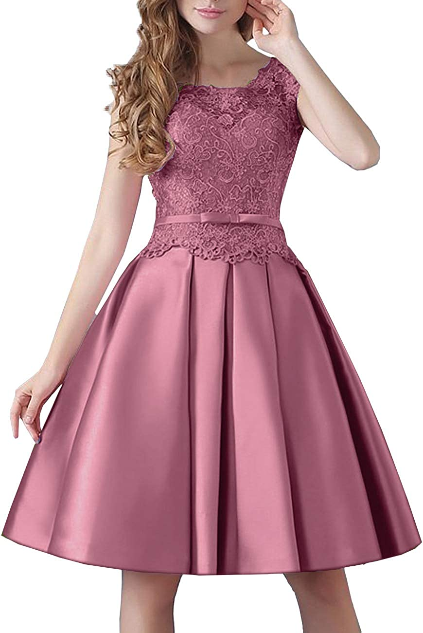 Prom Knee-Length Lace Cocktail Dress Short Stain Homecoming Dresses for Girls