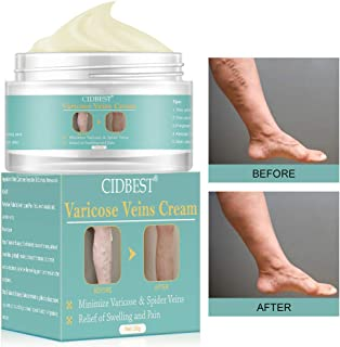 Varicose Cream, Varicose Veins Cream, Relief Phlebitis Angiitis Inflammation, Blood Vein Veins Vasculitis, Improve Blood Circulation, for Treatment Legs Care