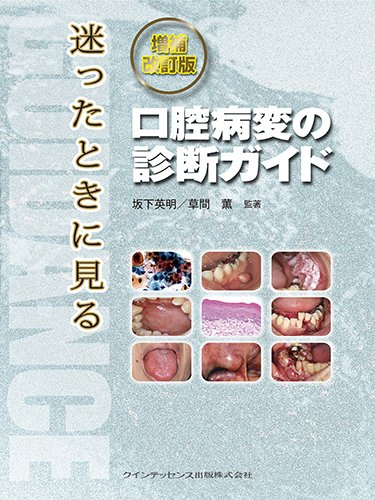 増補改訂版 迷ったときに見る口腔病変の診断ガイドの詳細を見る