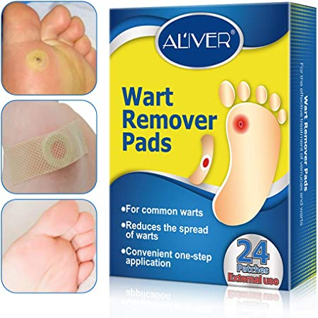 foot wart removal recovery time
