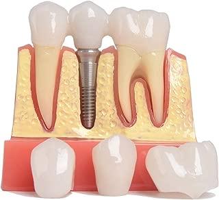 Best dental implant model Reviews