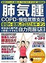 肺気腫 COPD・慢性気管支炎 自力克服大全