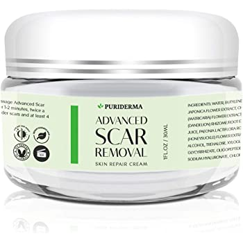 Scar Removal Cream - Advanced Treatment for Face & Body, Old & New Scars from Cuts, Stretch Marks, C-Sections & Surgeries - With Natural Herbal Extracts Formula - (30 ml)