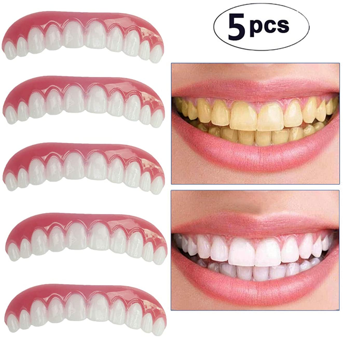レクリエーションに有罪上の歯の化粧板の5枚、フレックス化粧歯に適した化粧品の歯科快適性、最も快適な義歯のケア