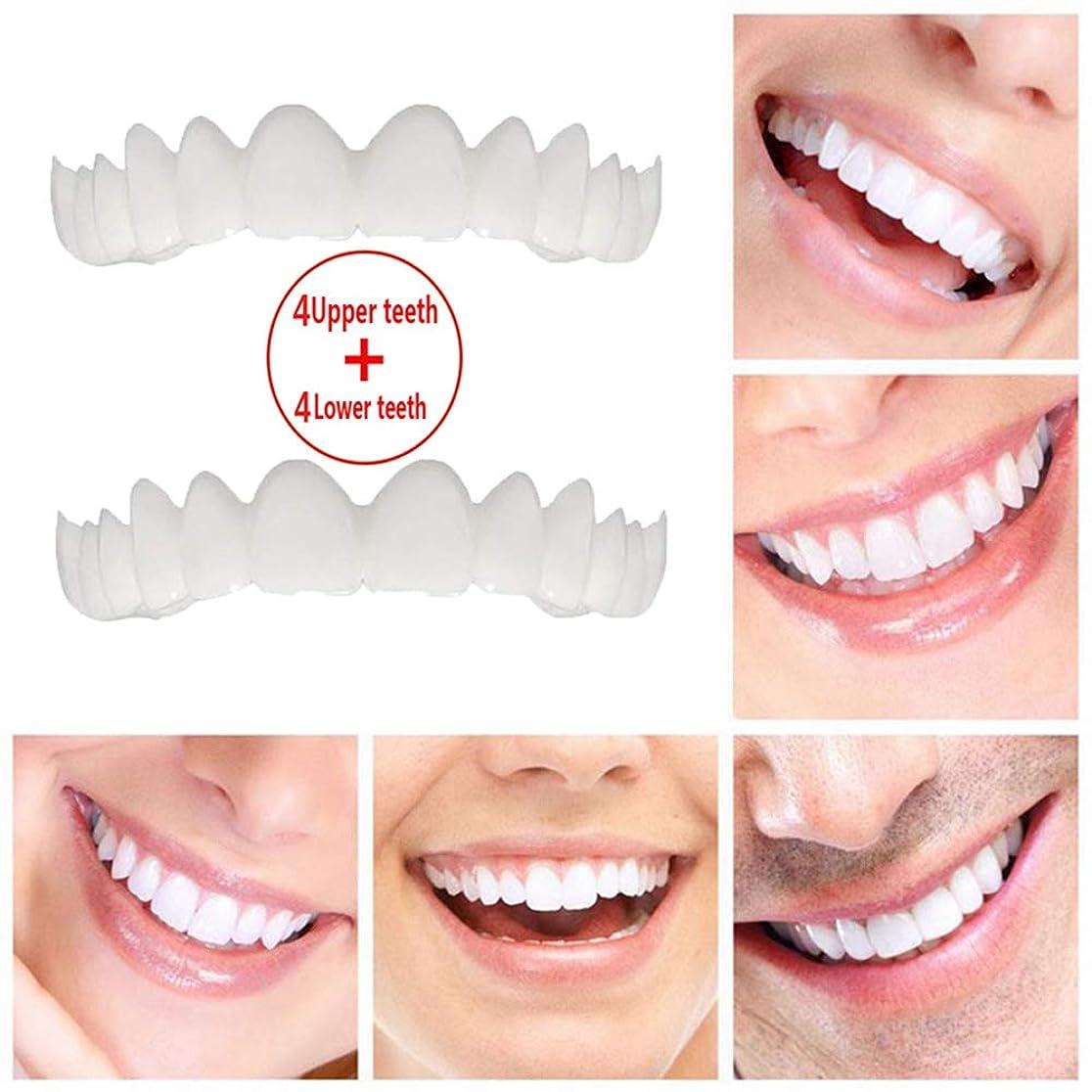 ピンチ私達印をつける歯のプロ用ブレース化粧品、上部ブレース+下部ブレース