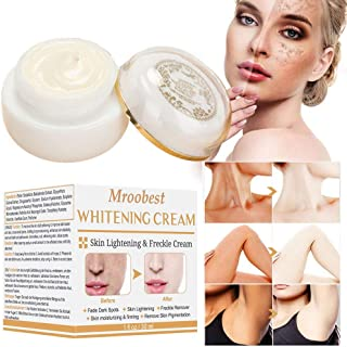 Whitening Cream for Face, Dark Spot Corrector, Freckle Cream, Brightening Cream, Spot Cream for Face, Freckle Fade Removal, Age Spots for Face and Body