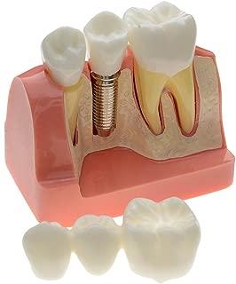 Best diy dental bridge Reviews