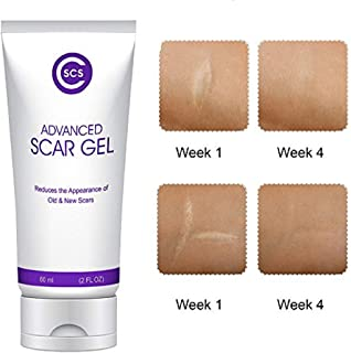cscs Advanced 祛*凝胶?–?reduces appearances OF old and 新款 scarring 纹和 keloids?–?褪色霜孕妇女式**痕 removal 和黑暗斑点