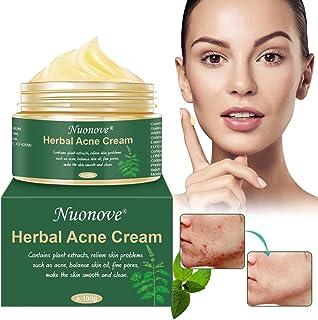 Crema Antiacne Acné Crema Acne Tratamiento Reducir los Puntos negros Acne Cream Equilibrar el Agua y el Aceite la Cr...