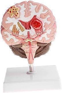 قسط التشريح المرضي لأمراض الدماغ البشري
