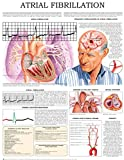 Atrial fibrillation e-chart: Quick reference guide