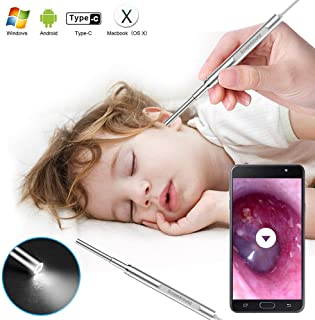 Digital Otoscope, Scopearound 2019 New Upgrade 3.9mm Diameter Visual Ultra-Slim HD Ear Scope Camera Ear Cleaner with Ear Wax Removal Tool and 6 Adjustable LED Lights for Android, Window and Mac