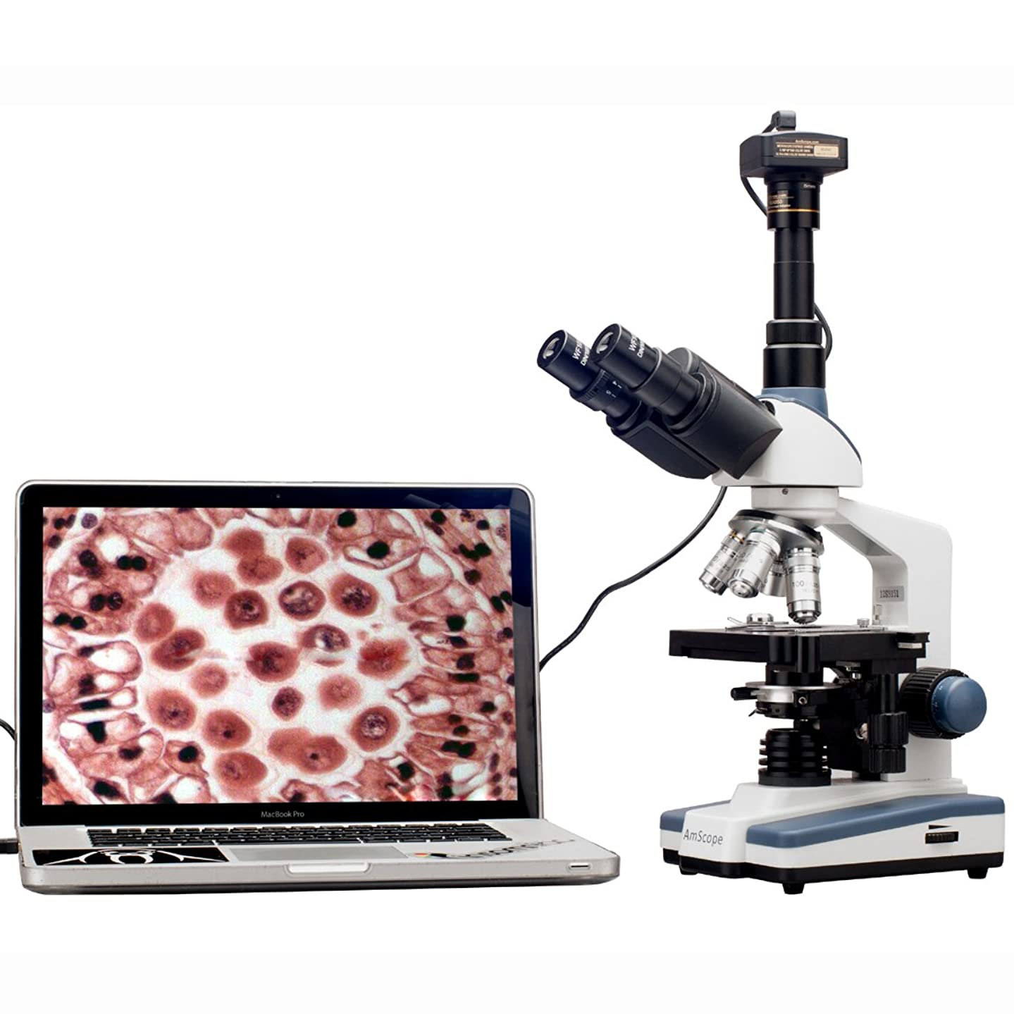 AmScope T120B-P Digital Professional Siedentopf Trinocular Compound Microscope, 40X-2000X Magnification, WF10x and WF20x Eyepieces, Brightfield, LED Illumination, Abbe Condenser with Iris Diaphragm, Double-Layer Mechanical Stage, 100-240VAC, Includes 0.3MP Camera with Reduction Lens and Software