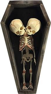 Asylum Zone Economy Conjoined Siamese Twin Skeleton in Coffin