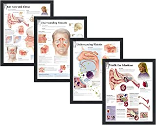 """Set of 4 Framed Medical Posters Ear, Nose and Throat, Understanding Sinusitis, Understanding Rhinitis, and Middle Ear Infections 22""""x28"""" Wall Diagrams"""