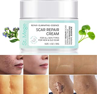St. Mege Scar Repair Cream - For Adults - New and Old Scars - Acne Scars - Surgery Scars - Scars from Burns, Cuts, and Other Injuries - 1 oz / 30g.