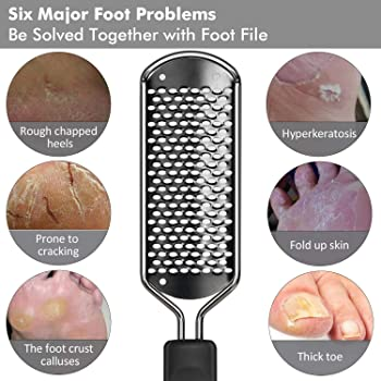 Colossal Foot File Callus Remover - BTArtbox Pedicure Foot Rasp Professional Stainless Steel Callus File for Wet and ...