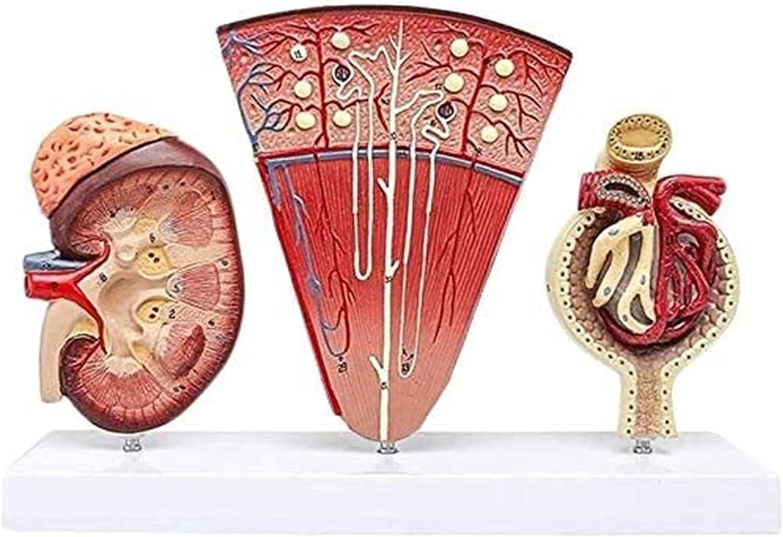 YUESFZ Organ Model Human It is SALENEW very popular! very popular with Neph Kidney Anatomical