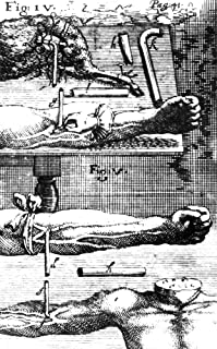 Blood Transfusion 1667 Nthe Techniques Of Blood Transfusion From Animal To Man (Top Fig Iv) And From Man To Man (Bottom Fi...