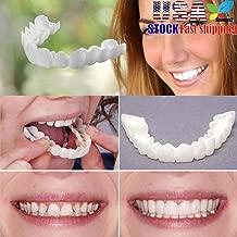 removable dental veneers