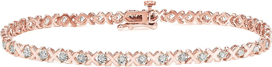 Best gold and diamond braces Reviews