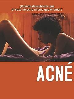 Best acne treatment videos Reviews