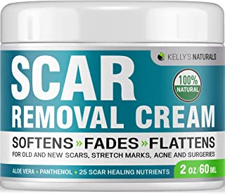 Scar Removal Cream - Effective Stretch Marks & Acne Remover Made in USA - Good for Old Scars & Acne Scars - with Aloe Vera, Panthenol & Calendula - Keloid Scar Fade & Skin Repair Treatment - 2 OZ