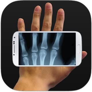 real x ray body scanner app on android