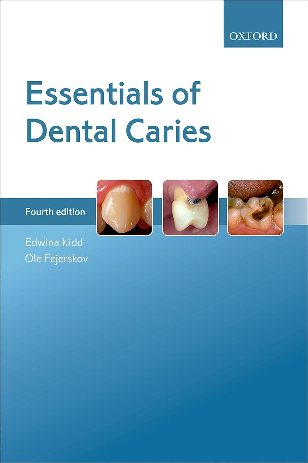 貧困資格情報不機嫌そうなEssentials of Dental Caries (English Edition)