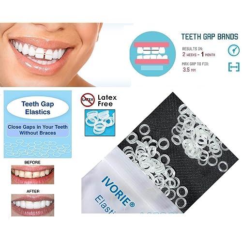 Teeth Braces: Amazon com