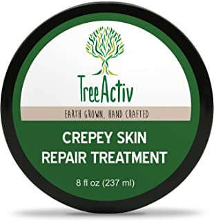 TreeActiv Crepey Skin Repair Treatment | Anti-Aging | Anti-Wrinkle | Organic Ingredients for Face Neck Chest Legs & Arms | Hyaluronic Acid Alpha Hydroxy Fruit Acids Honey Shea Castor