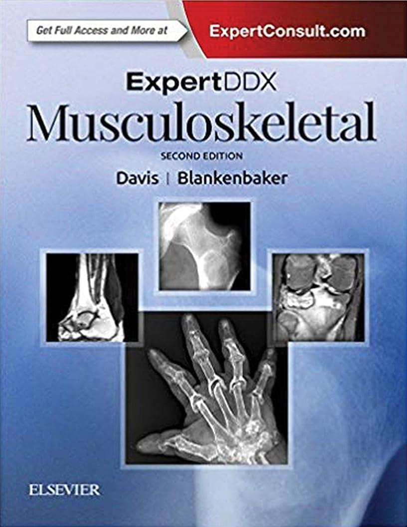 ハウジング力学要求ExpertDDx: Musculoskeletal E-Book (English Edition)