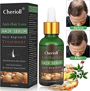 Hair Growth Serum, Hair Loss and Hair Thinning Treatment, Stops Hair Loss, Thinning, Balding, Repairs Hair Follicles, Promotes Thicker, Stronger Hair and New Hair Growth