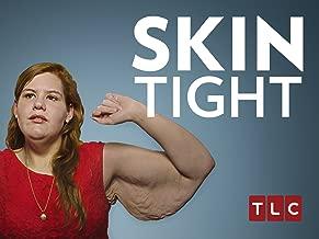 My 600-lb Life: Skin Tight Season 1
