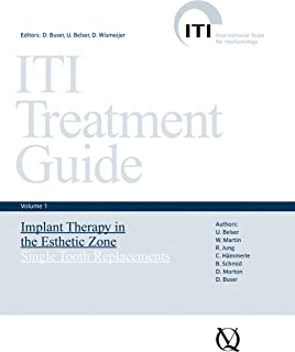 Implant Therapy in the Esthetic Zone: Single-Tooth Replacements (ITI Treatment Guide Series Book 1)