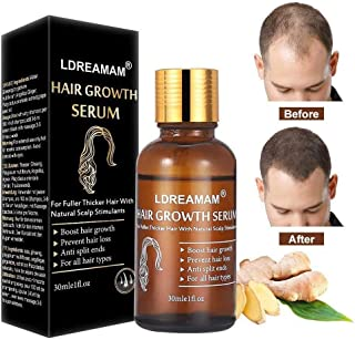 Hair Growth Serum,Hair Treatment Serum Oil,Hair Serum,Hair Growth Treatment,Hair Regrowth of Thinning Hair - Promotes Hair Growth,Stops Hair Loss,Thinning,Balding,And Promotes Hair Regrowth (30ML)