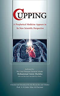 Cupping: A prophetical medicine appears in its new scientific perspective (English Edition)