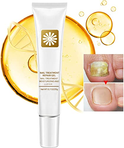 new arrival Nail Repair Cream, Natural Fungus outlet online sale Nail Treatment Fingernail and Toenail Repair Cream outlet online sale to Remove Onychomycosis and Restore Appearance of Healthy Toenail Fingernail with High Efficiency sale