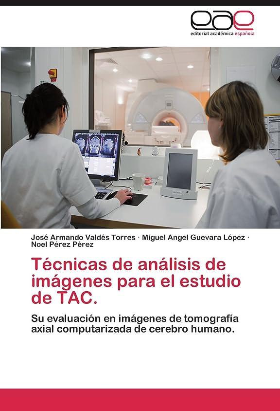 結婚した囚人デコードするTecnicas de Analisis de Imagenes Para El Estudio de Tac.