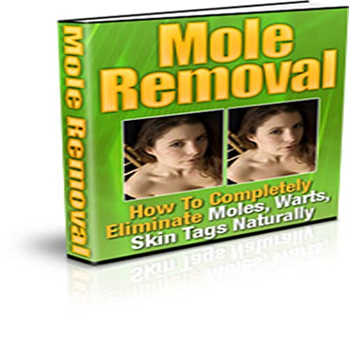 Mole and Wart Removal!