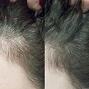 Hair Genetics® Retoca Raíces de Polvos Minerales de Aspecto ...