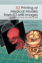 3D Printing of Medical Models from CT-MRI Images: A Practical step-by-step guide