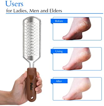 Professional Pedicure Foot File, Colossal Stainless Steel Detachable Foot Scrubber, Hard Skin Removers Pedicure Rasp ...
